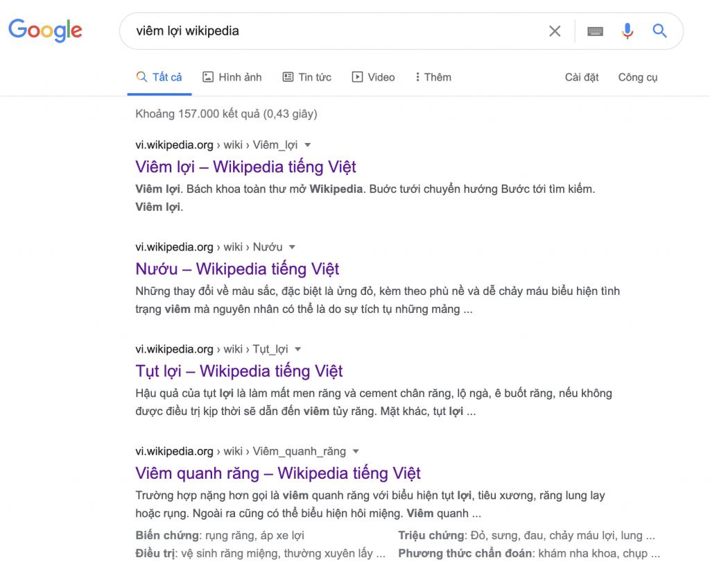 Kết quả trả về khi search từ khóa viêm lợi wikipedia